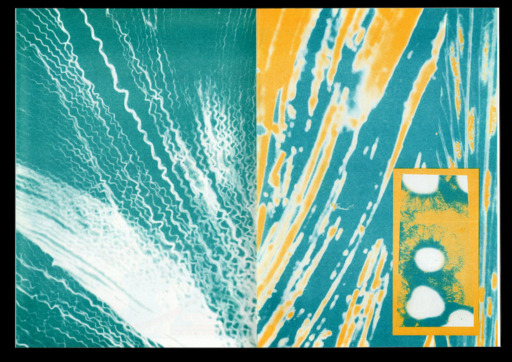 An abstract print with a teal background, featuring a number of organic forms and splashes. It's divided into two halves; the left features a number of string-like white shapes and lines emanating from the bottom right corner, while the right features yellow lines and white circles heading in the opposite direction.